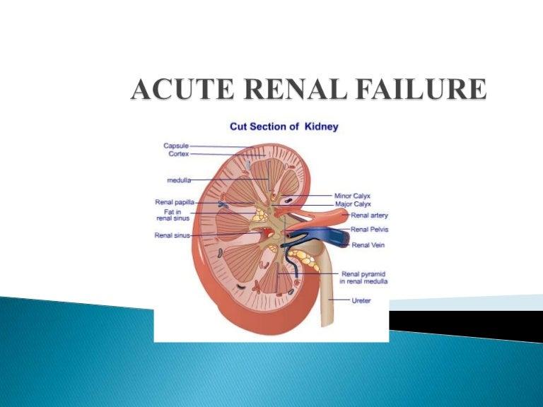 Acute Renal Failure Diagnosis