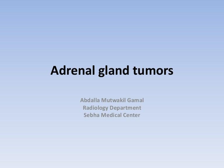 Adrenal gland tumors (Radiology)