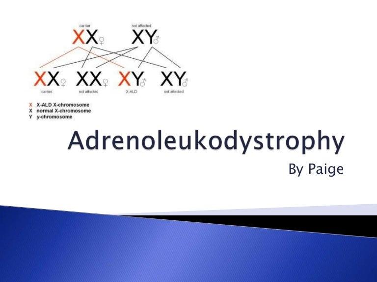 adrenoleukodystrophy, Skeleton