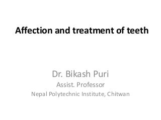 loan for the treatment of teeth