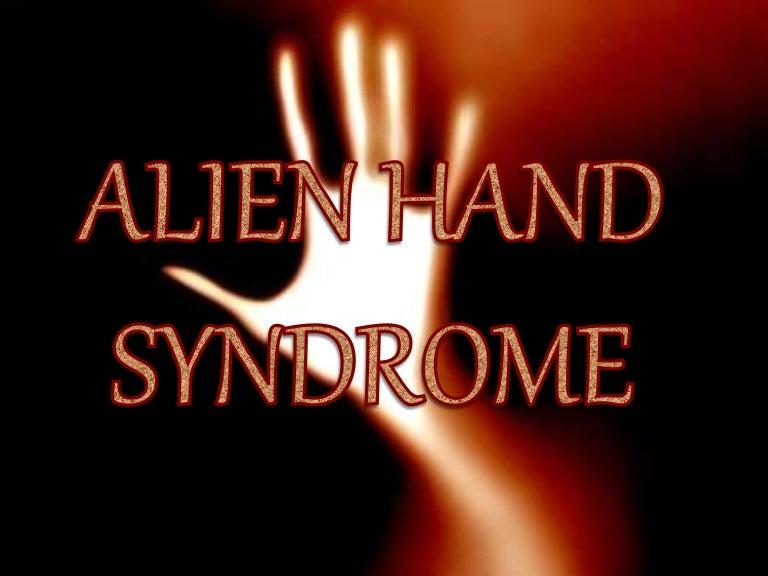 Alien hand syndrome presentation