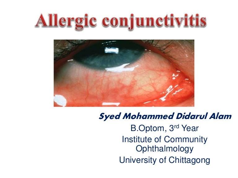 allergicconjunctivitis-150609110928-lva1-app6892-thumbnail-4?cb=1433848231, Skeleton