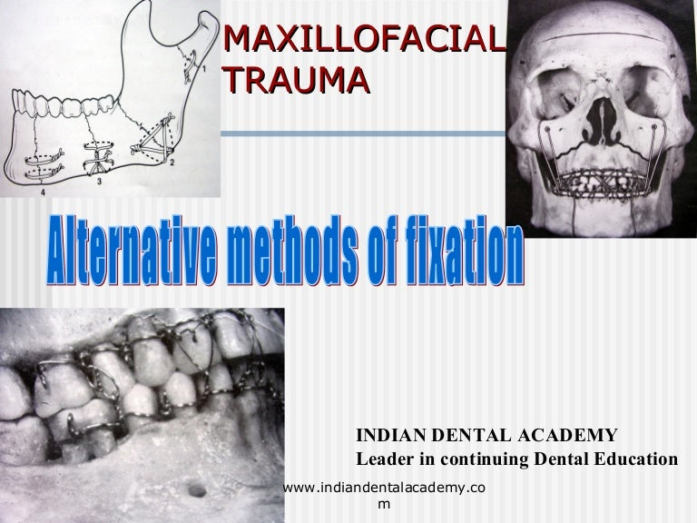 Alternative methods of fixation /dental courses