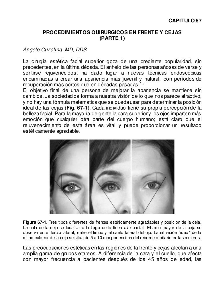 PROCEDIMIENTOS QUIRURGICOS DE LA FRENTE Y CEJAS: PARTE 1