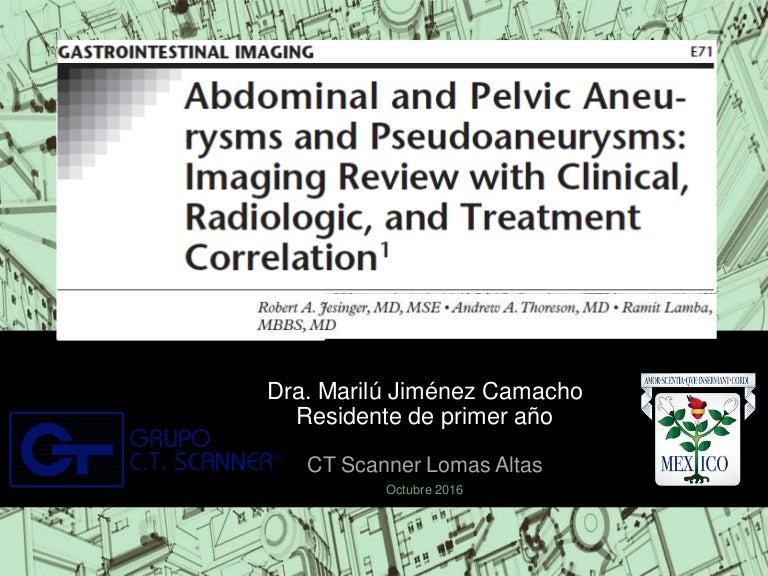 Aneurismas y pseudoaneurismas abdominales y pelvicos