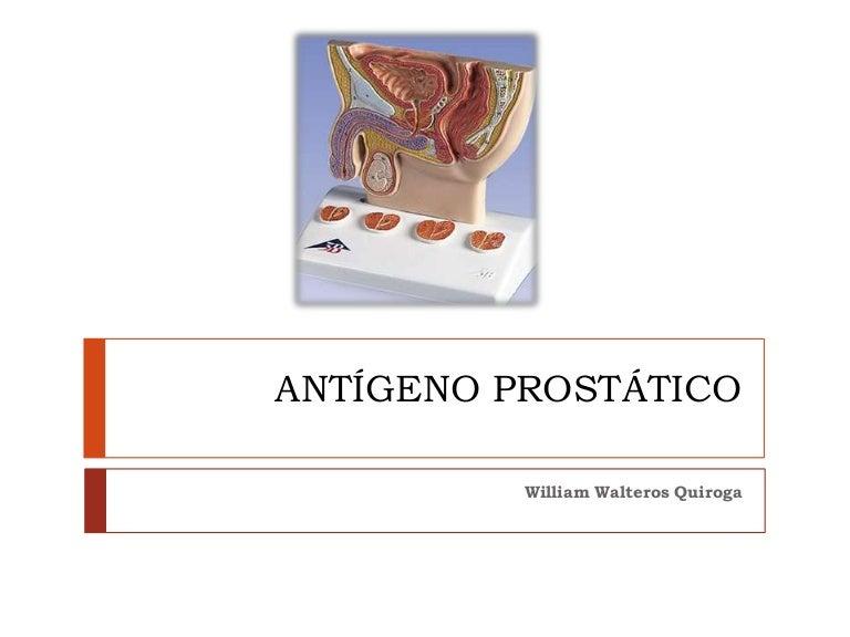 tasas de falsos positivos y falsos negativos para el antígeno prostático específico de psa