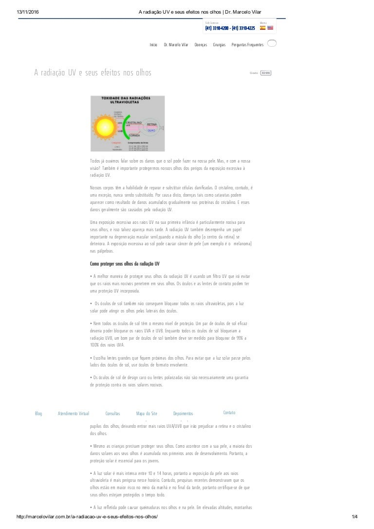 4b745fa8984d2 aradiaouveseusefeitosnosolhos-161119150053-thumbnail-4.jpg cb 1479567695