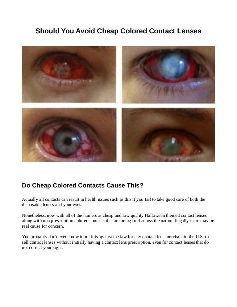 Non Prescription Colored Contacts >> Are Cheap Colored Contacts Dangerous