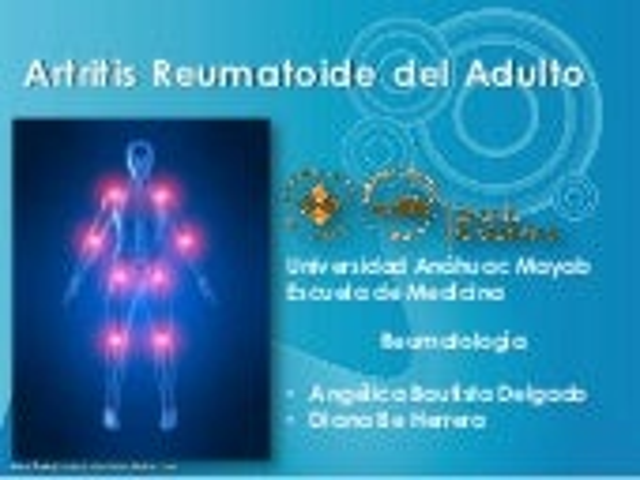 Artritis reumatoide del adulto.