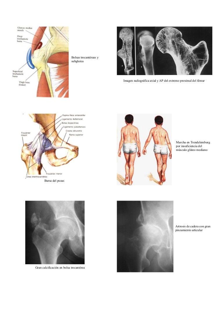 Artrosis de cadera