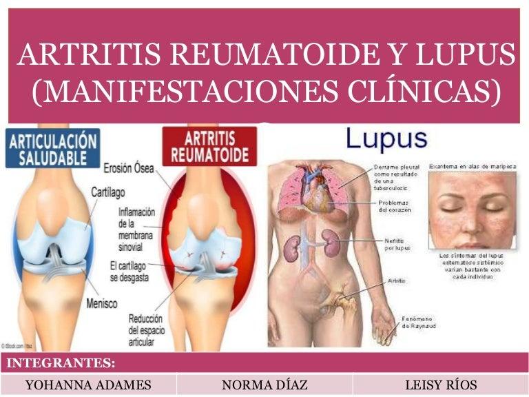 artritis TB eritematoso sistemico