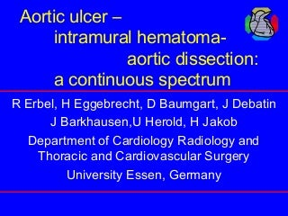 Aortic ulcer intramural hematoma aortic dissection
