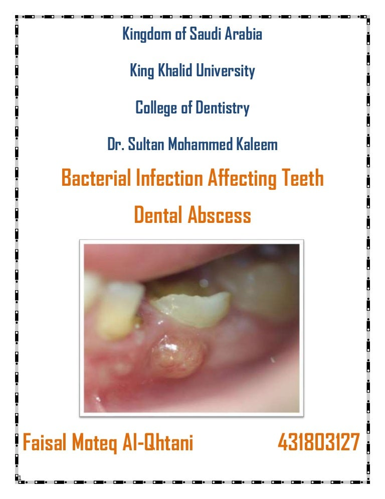 Bacterial Infection Affecting Teeth Dental Abscess
