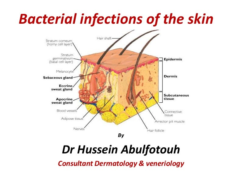Bacterial Infection Of The Skin
