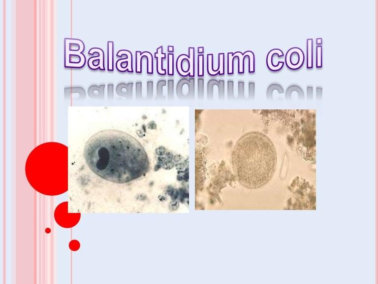 paraziták a bal hypochondriumban