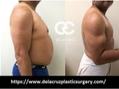 Best liposuction houston