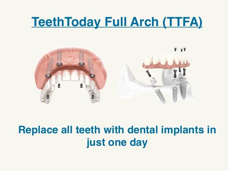 TTFA - TeethToday Full Arch - Abaden Dental Group