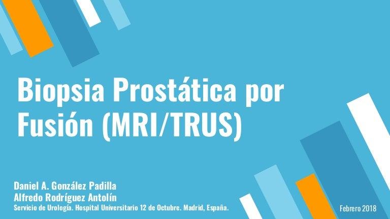 ecografía de resonancia magnética para biopsia de próstata dirigida