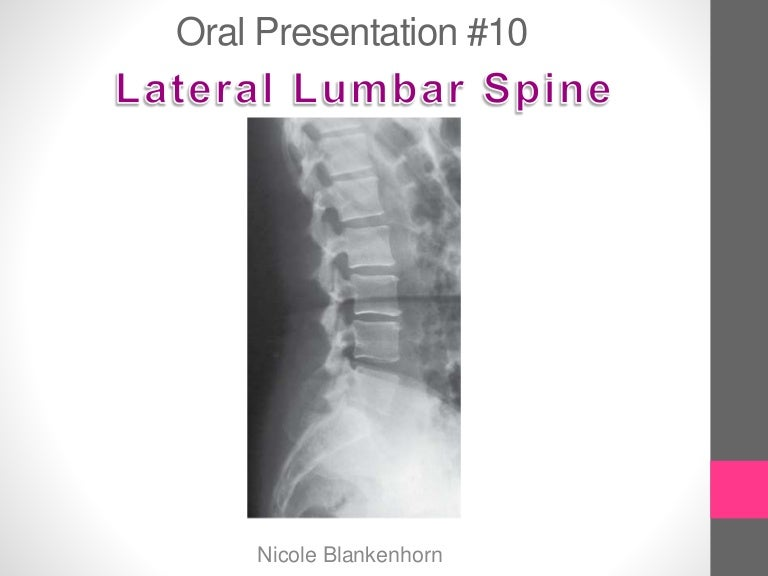 Final Image Evaluation Left Lateral Lumbar Spine