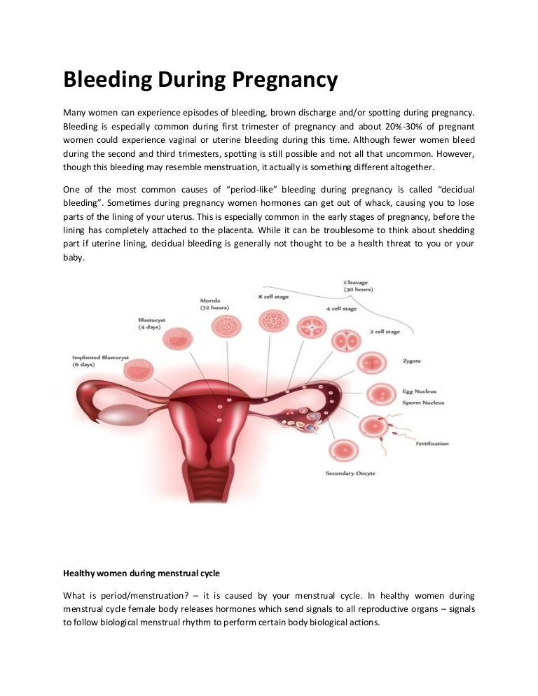 Bleeding during pregnancy
