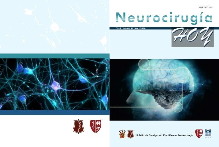 Neurocirugía Hoy, Vol. 8, Numero 24