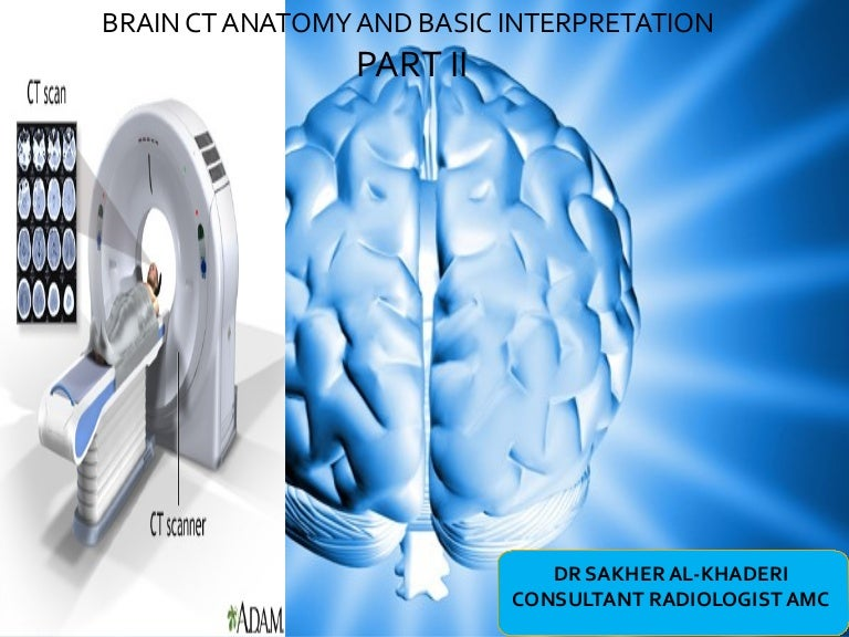 Brain Ct Anatomy And Basic Interpretation Part Ii