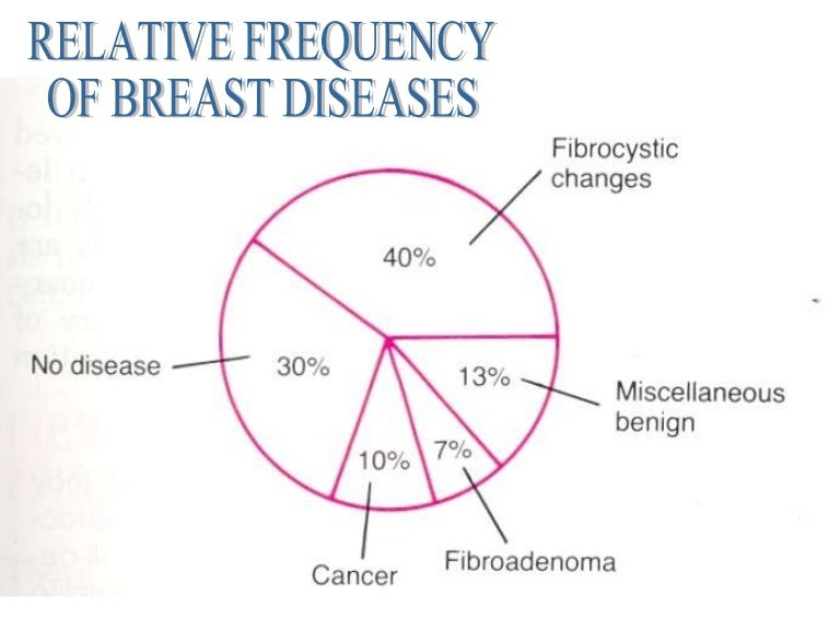 Some Women with Abnormal Breast Lesions May Avoid Surgery
