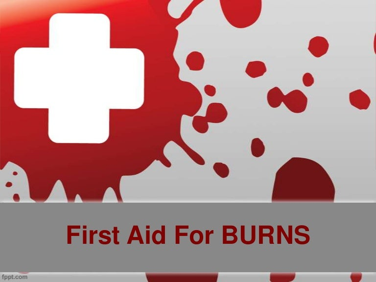 burns first aid, Powerpoint templates