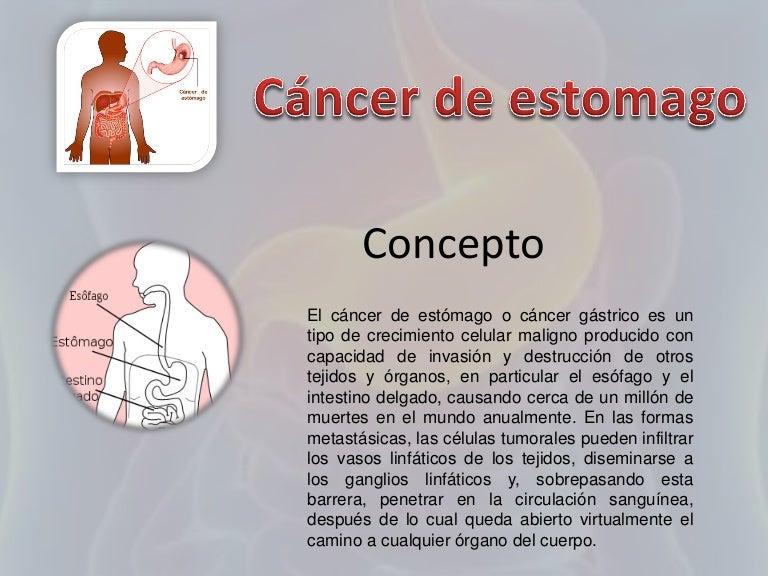 Cancer de estomago tratamiento quimioterapia
