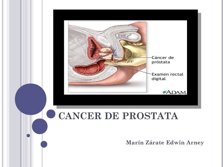 etapas de resonancia magnética para el cáncer de próstata