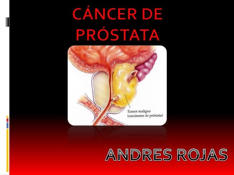 cancer de prostata estado 4