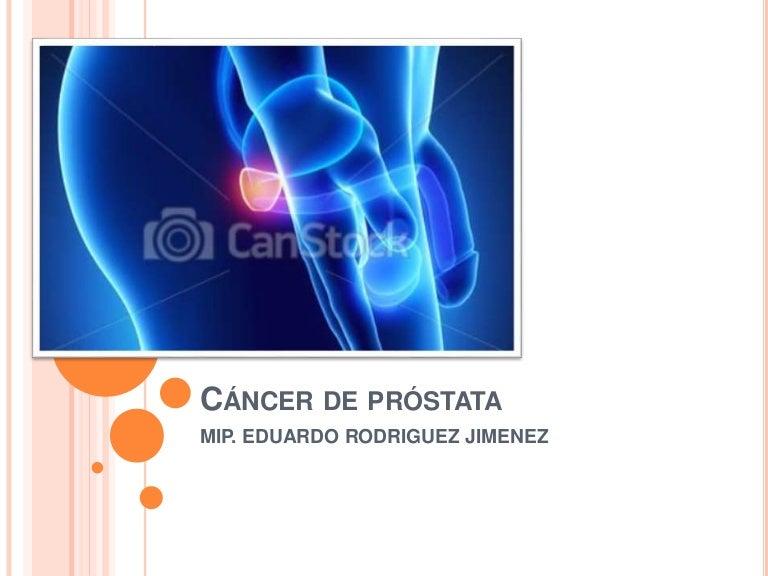 ¿Qué es ICD 10 para el antígeno prostático específico?