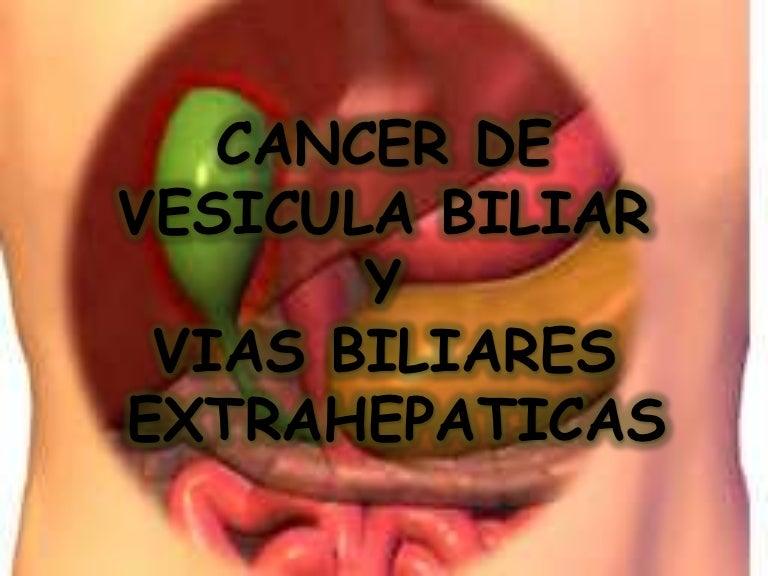 Cancer biliar pronostico. Cancer vesicula biliar histologia, Fisiopatologia Miastinia Gravis