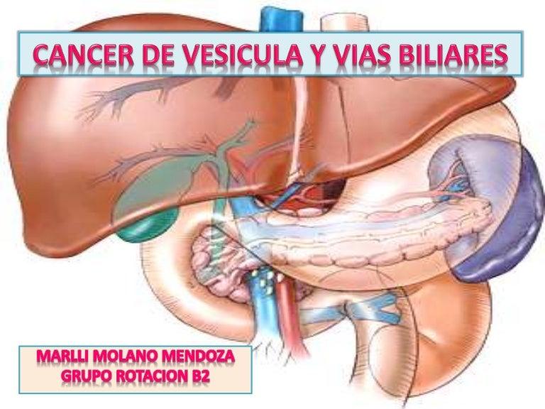 Cancer conducto biliar sintomas