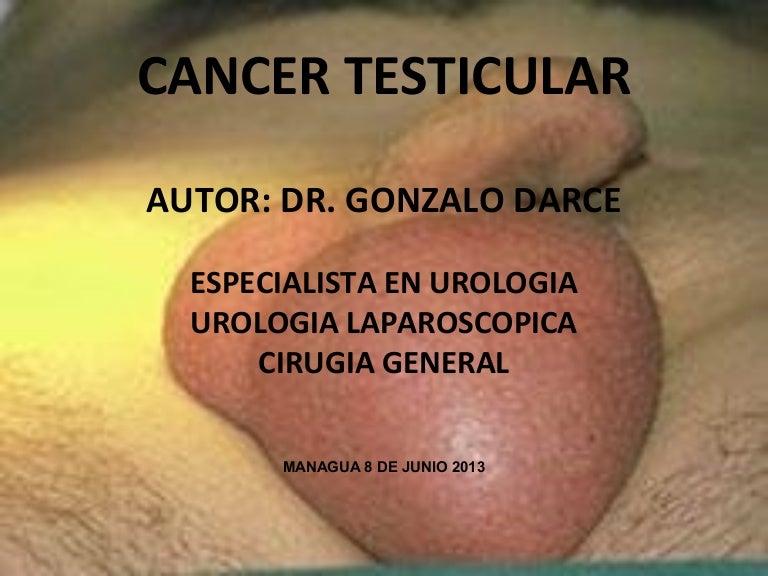 cancer de testiculo sintomas y tratamiento