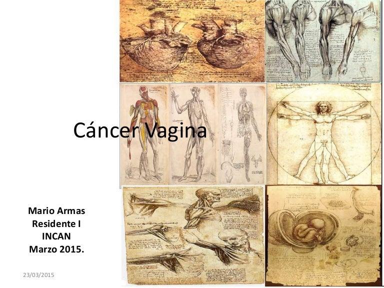 Cancer vagina radioterapia 2015
