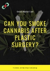Can you smoke cannabis after plastic surgery
