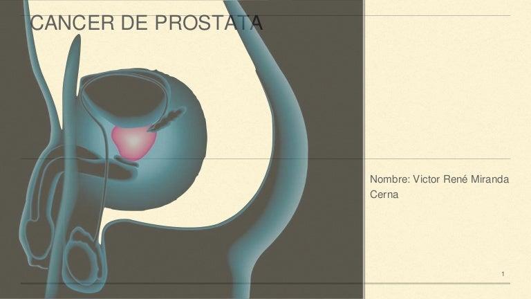 prostatitis y glándulas cowper i
