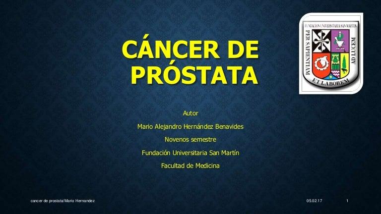 alto riesgo de cáncer de próstata si el padre es mayor de 40 años
