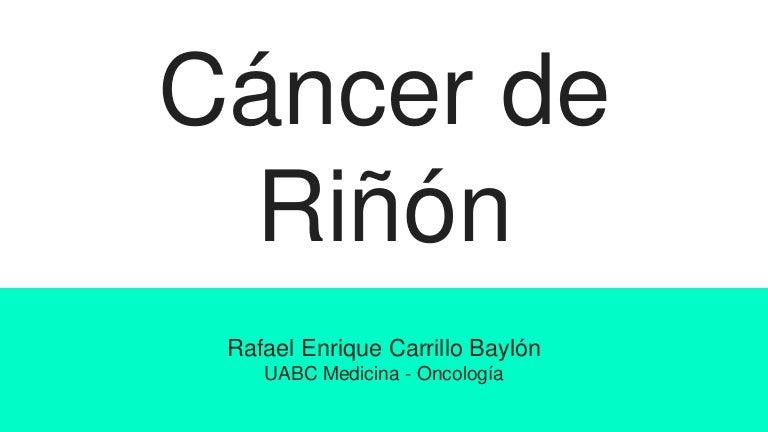 De varicocele lado células derecho renales carcinoma del