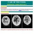 Case record...Thalamic glioma