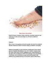 Causes of peripheral neuropathy, sciatic nerve pain relief stretches, topical cream for nerve pain