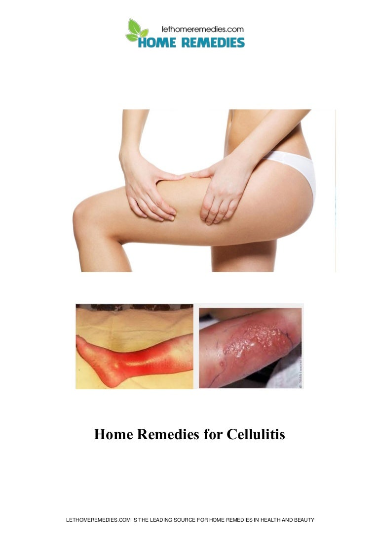Cellulitisthumbnailjpgcb - Natural home remedies for cellulitis