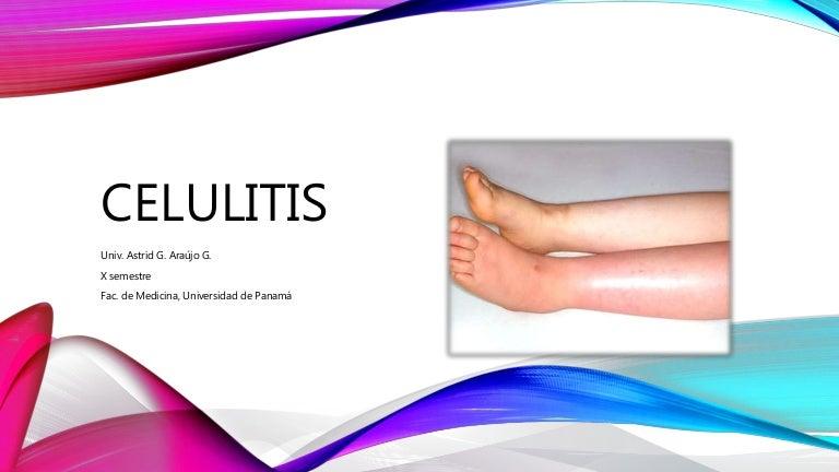infección por flebitis celulitis