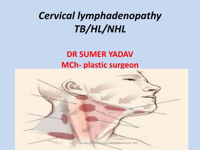 Cervical lymph adenopathy