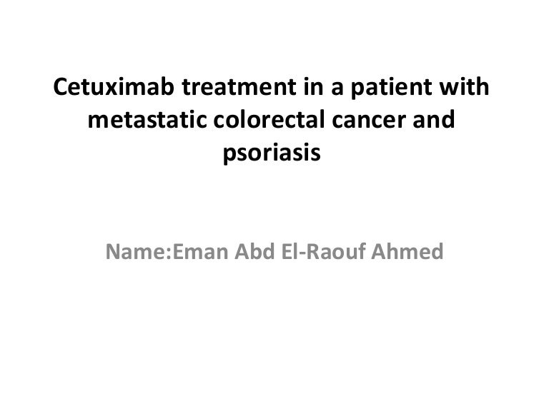 Cetuximab Treatment In A Patient With Metastatic Colorectal