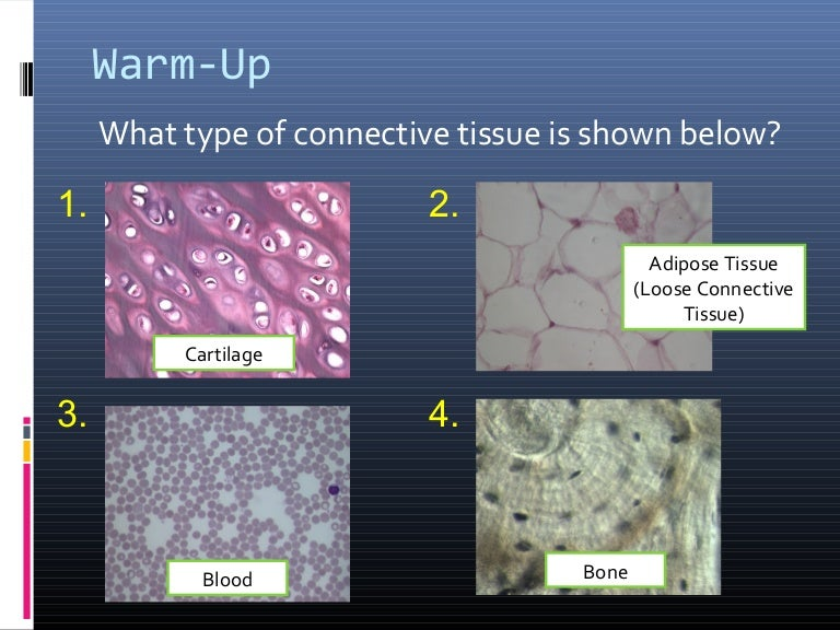 Anatomy & Physiology Lecture Notes - Ch. 4 tissues - connective
