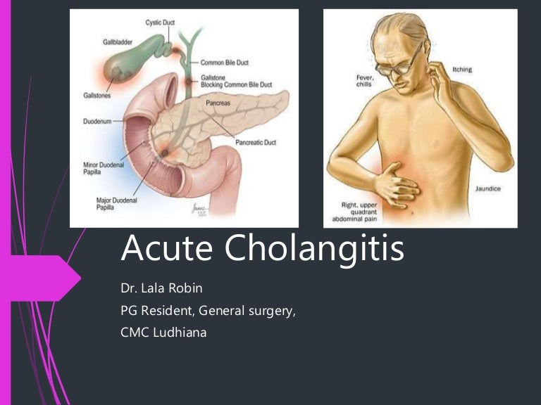 Cholangitis