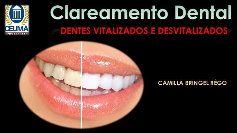 Clareamento Dental Interno