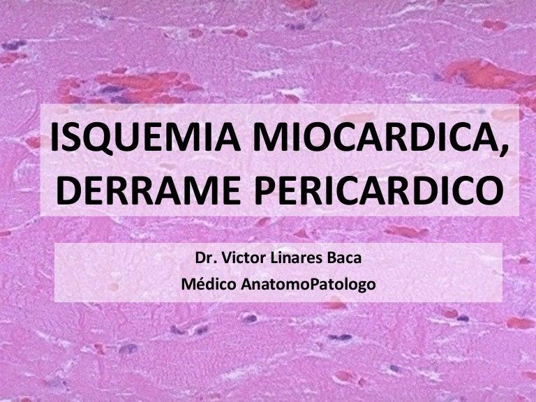 isquemia miocardica e grave